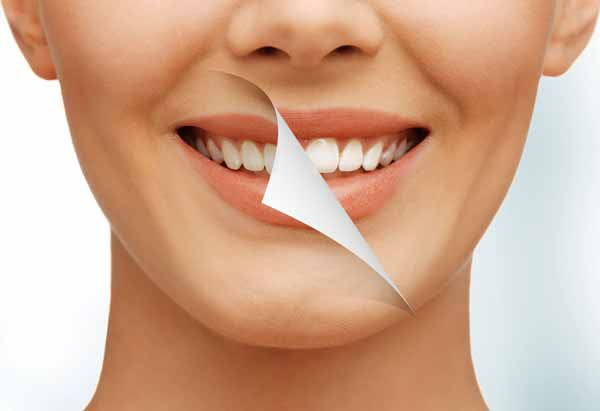 Dental Whitening North Vancouver
