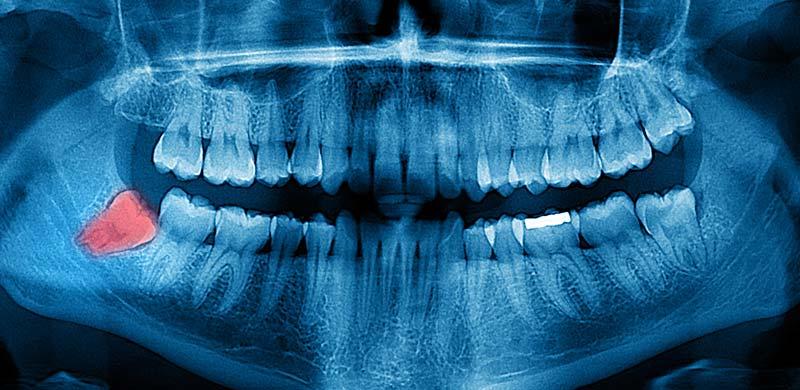 Wisdom Teeth Removal North Vancouver