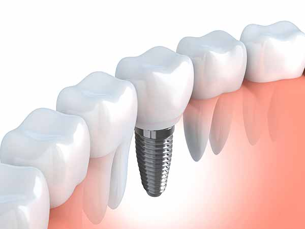 Dental Implants North Vancouver