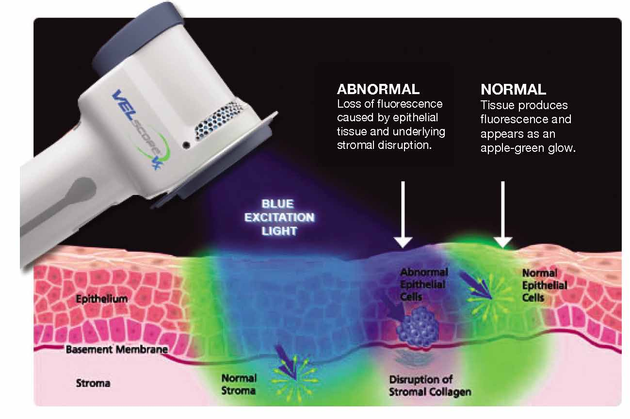Early Cancer Screening with VELscope
