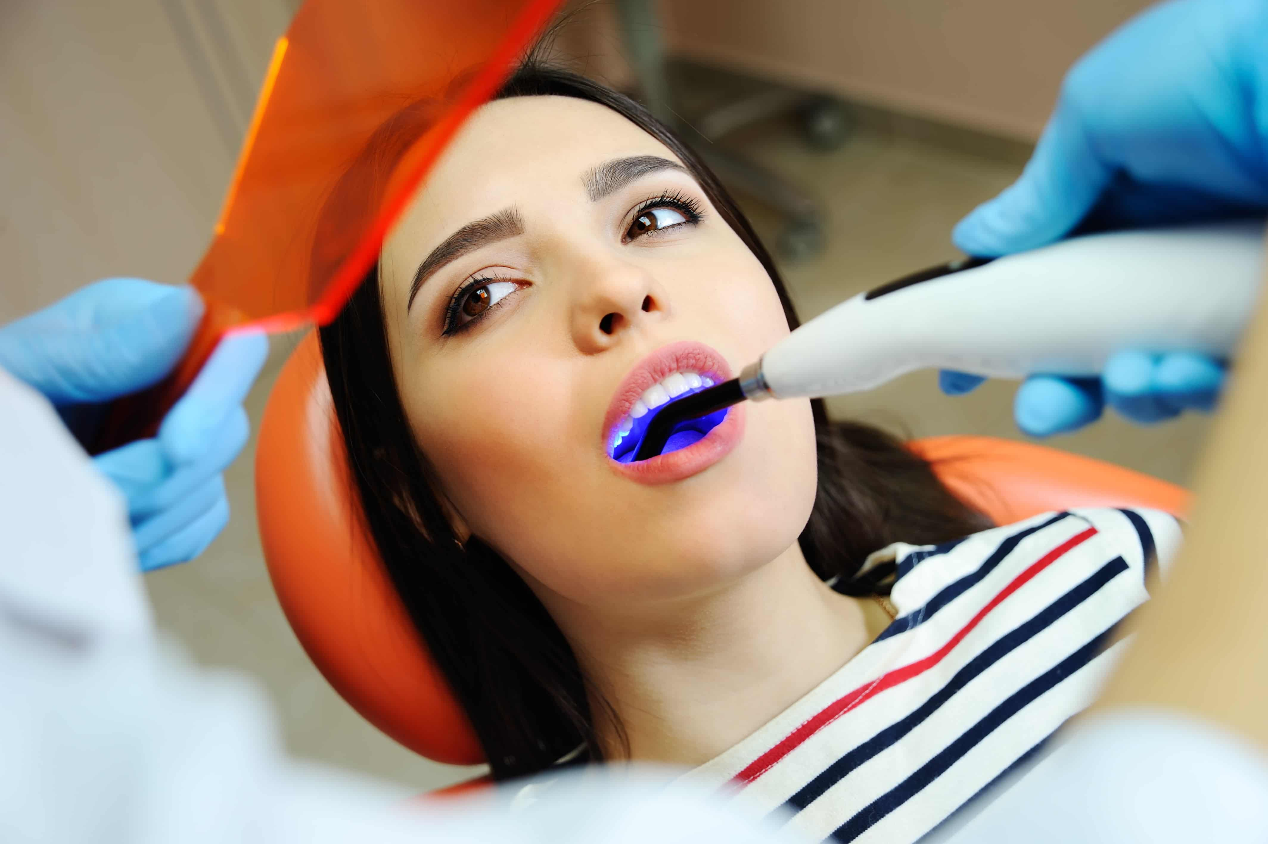 Seven FAQs about Dental Fillings