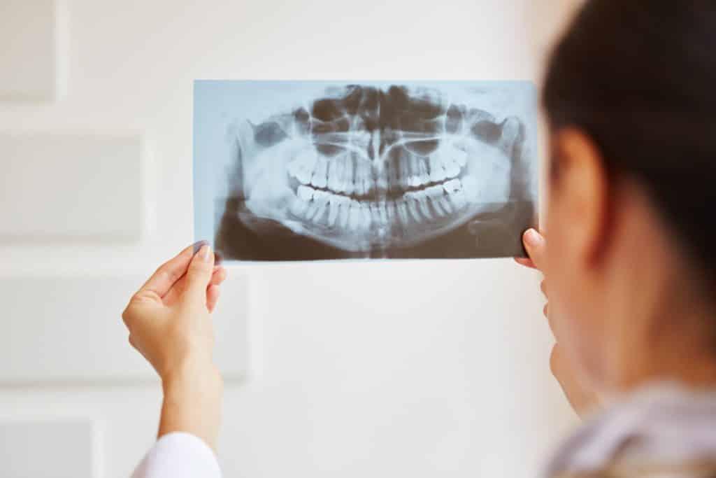 dental xrays and examinations