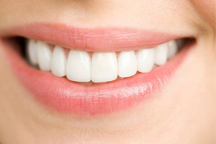Can Veneers Be Whitened?
