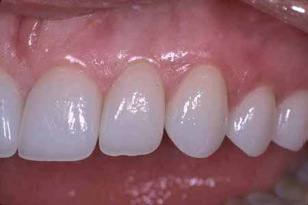 dental-case-after