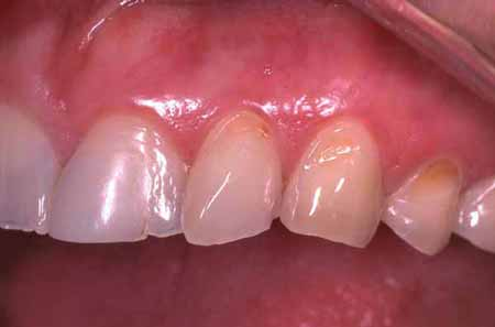 restorative dental before