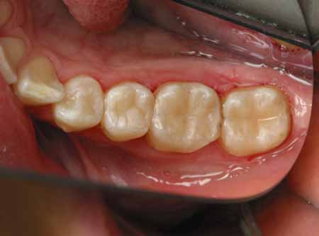 fillings after