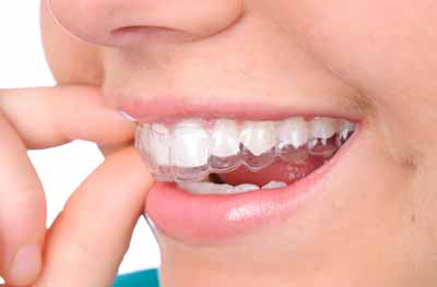 Invisalign in North Vancouver is helping this patient get straighter teeth