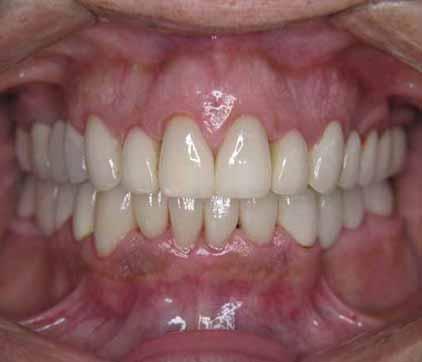 restorative dental after