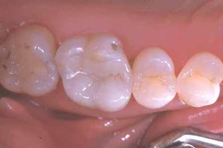 dental hygiene north vancouver