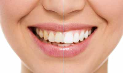 reliable and easy teeth whitening