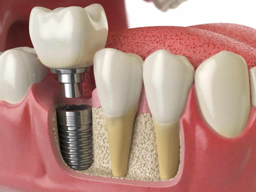 tooth implant costs in North Vancouver