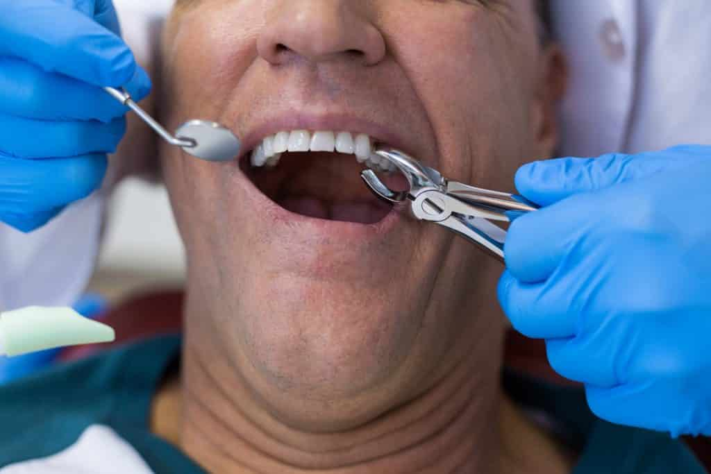 tooth extractions FAQ