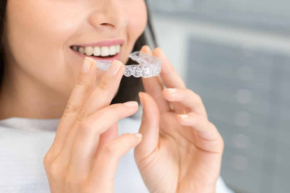 best age to get invisalign